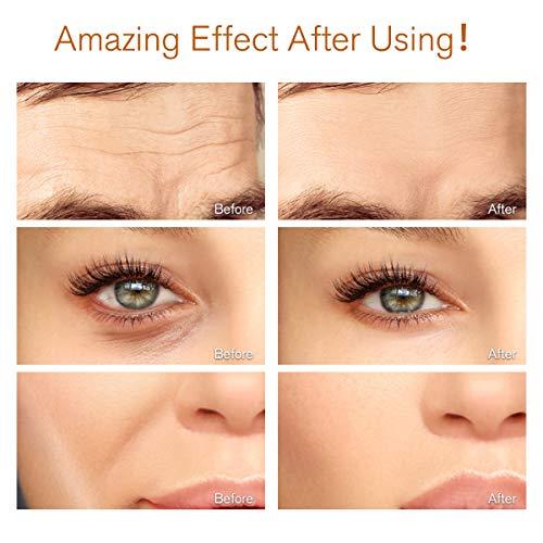 LIUMY Beauty Bar 24k masajeador Facial, Rodillo Facial Antiarrugas en Forma de T para Estiramiento Facial,  Absorción del Cuidado de la Piel,  Antiarrugas,  Piel Apretada,  reafirmante Facial