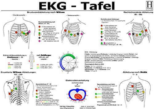 EKG Tafel - A3 (laminiert)