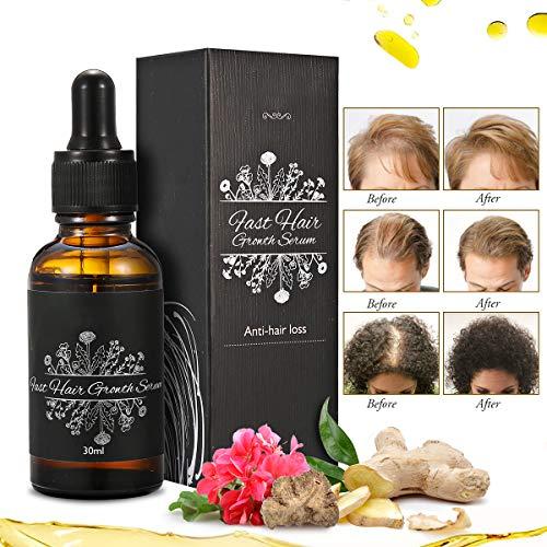 Janolia 30 ml Haarwachstums-Serum, Anti-Haarausfall, Haarwachstums-Behandlung, ätherisches Öl, Haarausfall-Behandlung Produkt für dünner werdendes Haar Männer und Frauen -