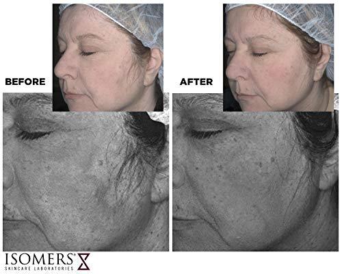 Isomers Retiniacin Age Diffuser 55 ml, Night Cream, Collagen Booster, Retinol, Vitamin C, Vitamin A, Vitamin E, Vitamin B3, Niacinamide, Sensitive Skin, Collagen Booster, Fine Wrinkles -
