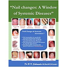 """""""Nail changes: A Window of Systemic Diseases"""": """"Nail changes and Systemic association"""" (English Edition)"""
