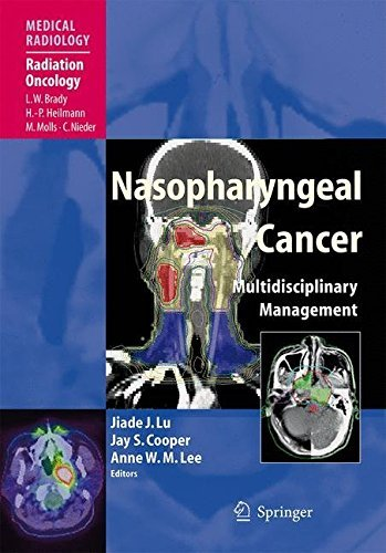 Nasopharyngeal Cancer: Multidisciplinary Management (Medical Radiology) (2012-04-06)