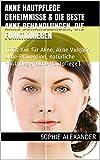 Akne-behandlungen - Best Reviews Guide