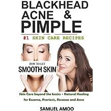 Blackheads, Acne & Pimple: Blackheads, Acne, Pimple home remedies & Treatment Book
