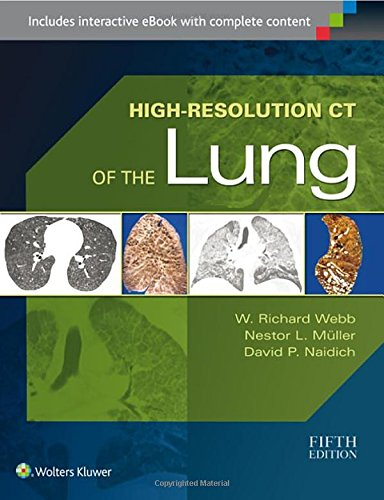 High-Resolution CT of the Lung por W. Richard Webb