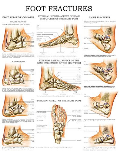 Foot fractures - Quick Reference Chart: Full illustrated (English Edition) (Full Sport Foot)