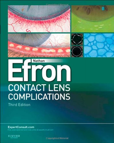 Contact Lens Complications (Preis Der Kontaktlinsen)
