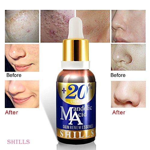 SHILLS+20% Mandelic Acid Skin Renew Essence (30ML)-Vitamin E & Mandelsäure Serum entfernen Akne, Falten, Anti Aging, Aufhellung Gesicht...