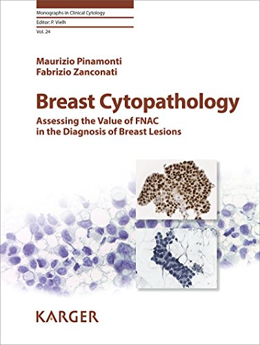 Breast Cytopathology: Assessing the Value of FNAC in the Diagnosis ...