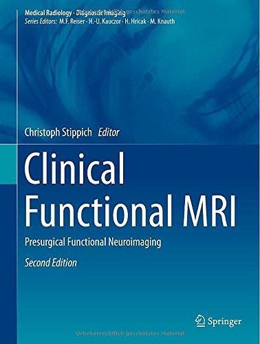 Clinical Functional MRI: Presurgical Functional Neuroimaging (Medical Radiology) (2015-02-28)
