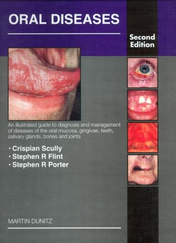 Oral Diseases: An Illustrated Guide to Diagnosis and Management of Diseases of the Oral Mucosa, Gingivae, Teeth, Salivary Glands, Bones and Joints