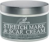 Art Naturals Stretch Mark & Scar Removal Cream 120ml - Best Body Moisturizer to Remove, Decrease & Prevent New / Old Stretch Marks & Scars - Made in USA with Organic Ingredients - Use After Pregnancy