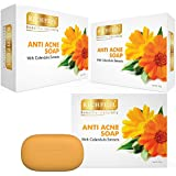Richfeel Calendula Acne Soap, 75g (Pack of 3)