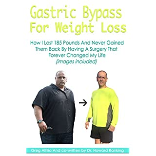 Gastric Bypass For Weight Loss (With Pictures): How I Lost 185 Pounds And Never Gained Them Back By Having A Surgery That Forever Changed My Life (English Edition)