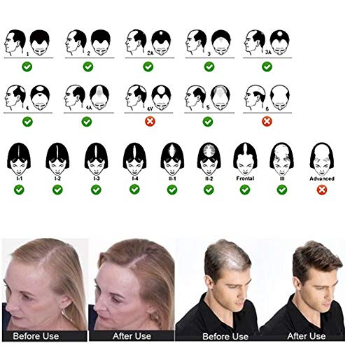 Lispeed Streuhaar zur Haarverdichtung vollem Haar in Sekunden. Schütthaar für einen authentischen Look. 100% Natur! In Premium Friseurqualität