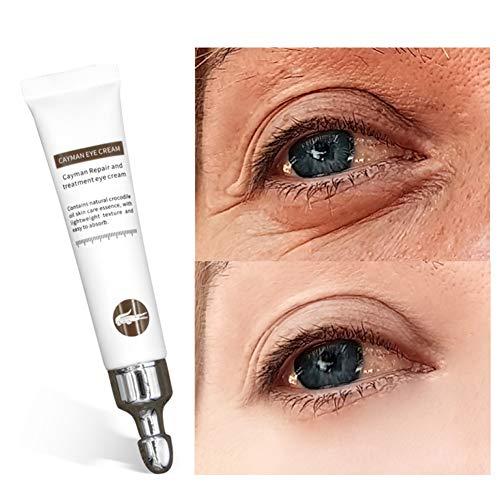 ColorfulLaVie Crocodile Repair Augencreme, Anti-Augenringe Fett Granulat Feine Linien Repair Augencreme, Feuchtigkeitsspendende Anti-Aging Anti-Falten-Augenserum