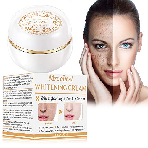 Whitening Cream, Aufhellende Creme, Altersflecken Creme, pigmentflecken entferner , Flecken Creme,...