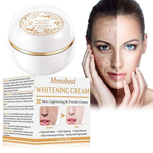 Whitening Cream, Aufhellende Creme, Altersflecken Creme, pigmentflecken entferner , Flecken Creme, Haut Aufhellende Creme gegen Altersflecken/Dunkle Flecken Sommersprossen Entferner -