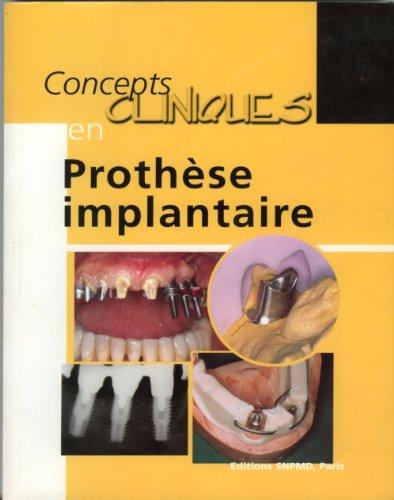 Concepts cliniques en prothèse implantaire