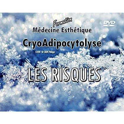 RISQUES DE LA CRYOLIPOLYSE: Anatomie, examen médical, examen clinique et imagerie pour les réduire