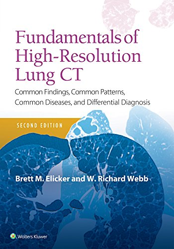 Fundamentals of High-Resolution Lung CT: Common Findings, Common Patterns, Common Diseases and Differential Diagnosis (Pocket Notebook) por Brett M. Elicker