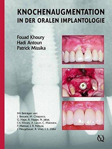 Augmentative Verfahren in der oralen Implantogie