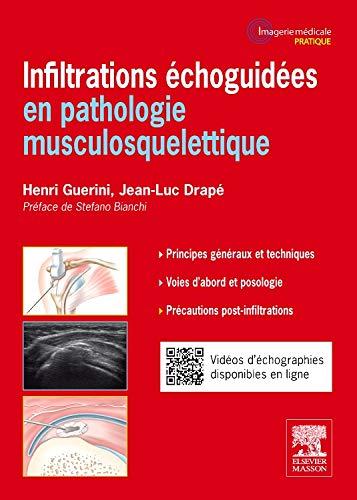 Infiltrations échoguidées en pathologie musculosquelettique