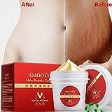 Dehnungsstreifen Creme Aknenarben Creme Scar Cream, KOBWA Creme gegen Dehnungsstreifen für Frauen und Männer (35ml)