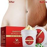 ESHOO natürliche glatte Haut Hautpflege Essenz Reparatur Fettleibigkeit Falten entfernen Dehnungsstreifen für schwangere Damen konzipiert