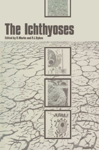 The Ichthyoses: Proceedings of the 2nd Annual Clinically Orientated Symposium of The European Society for Dermatological Research (2012-05-06)