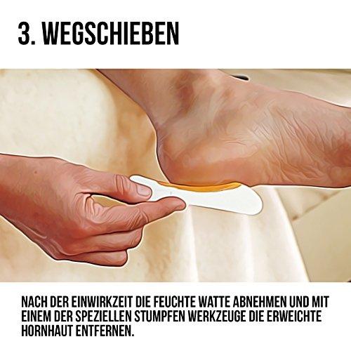 Hornhautentferner Lösung zur sanften Hornhautentfernung von MR. FUSS. Schnell erweichende Lotion 250ml No. 4 im Plus Pack. Fußpflege Pediküre Set ohne Schleifen mit Sofort-Effekt.