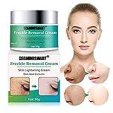 Skin Lightening Cream, Whitening Cream, Brightening Cream, Melasma Treatment Cream, Freckle Removal Cream