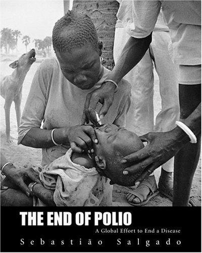 Wann Baby Gegen Masern Impfen