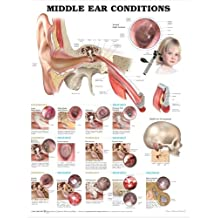 Middle Ear Conditions Anatomical Chart