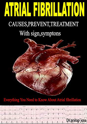 Atrial Fribrillation Causes,prevent ,treatment With Sign ,symptoms,everything You Need To Know About Atrial Fibrillation por Dr.pratap Jena
