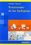Tratamiento de las Epilepsias