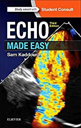 Echo Made Easy, 3e