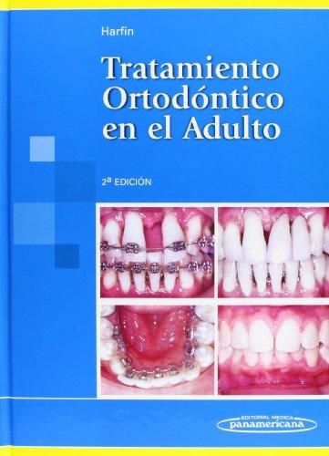 Tratamiento Ortodontico En El Adulto