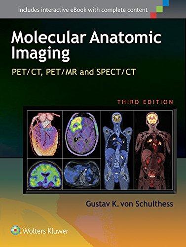Molecular Anatomic Imaging: PET/CT, PET/MR and SPECT CT