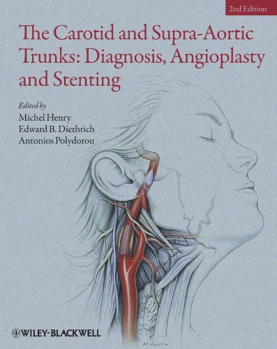 The Carotid And Supra-aortic Trunks: Diagnosis, Angioplasty And Stenting por Michel Henry epub