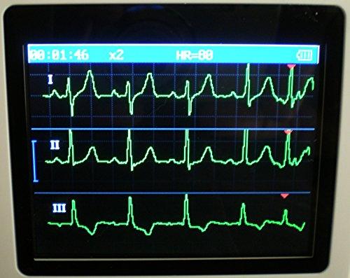 Mobile professionelle EKG Geräte-3-12 Kanal-Anleitung mit deutschen Ausführungen-Vorhofflimmern Neuestes Modell: Portables Hand EKG Gerät für Langzeit Messung 24 STD. OD. 30 SEK.-1 bis 3 Kanal Darstellung