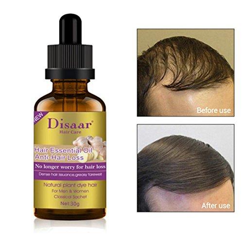 Dinglong Disaar Dekokt von Ingwer Ätherisches Öl Haarwuchslösung 40 ml Feuchtigkeitsspendende Nähr Kopfhaut Glatte Trockene Repair Behandlung Haarpflege Öl
