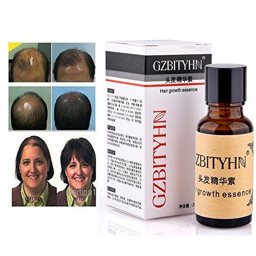 Aceite Crecimiento Cabello Esencia para Crecimiento del Pelo contra la Alopecia Tratamiento de la Pérdida de Cabello para Hombres Mujeres (2 Botellas)