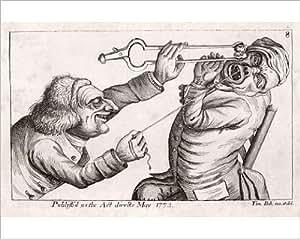Imprimé photographique de l'art dentaire, 18e siècle carré