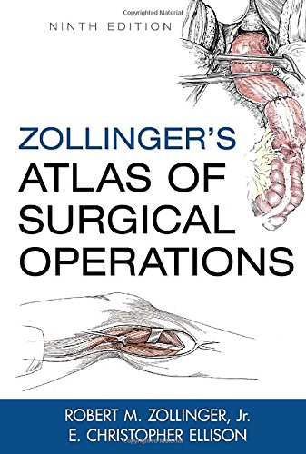Zollinger's atlas of surgical operations (Medicina)