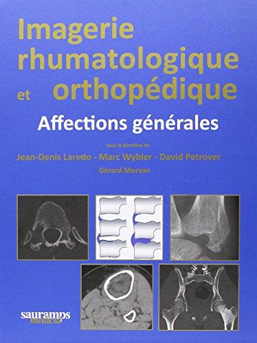 Imagerie rhumatologique et orthopédique : 4 volumes par Jean-Denis Laredo
