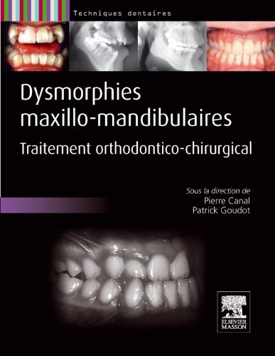 Dysmorphies maxillo-mandibulaires: Traitement orthodontico-chirurgical