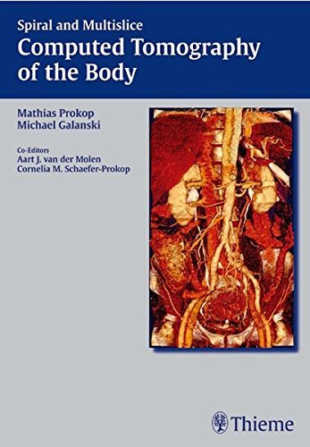 Spiral and Multislice Computed Tomography of the Body by Mathias Prokop (2002-12-18)