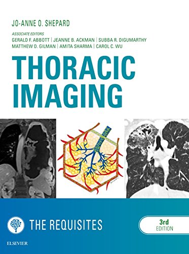 Thoracic Imaging The Requisites E-Book (Requisites in Radiology) (English Edition)