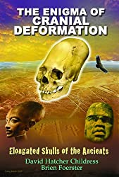 Enigma Of Cranial Deformation: Elongated Skulls of the Ancients